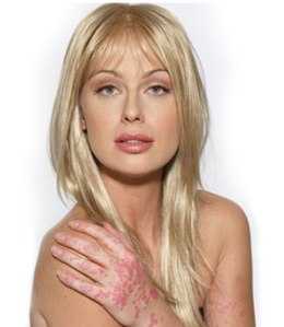 psoriasis-caridee_english